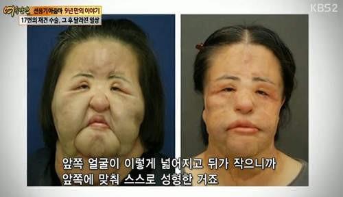 劣化 韓国 整形